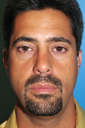 Richard Davis, MD Primary Rhinoplasty: Patient 1, Front View, Post-Op
