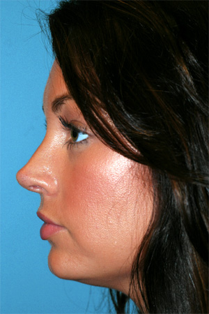 Richard Davis, MD Revision Rhinoplasty: Patient 1, Profile View, Post-Op