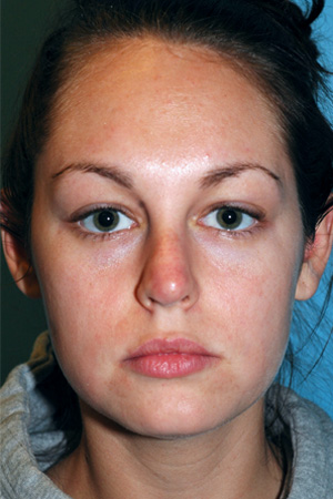 Richard Davis, MD Revision Rhinoplasty: Patient 1, Front View, Pre-Op