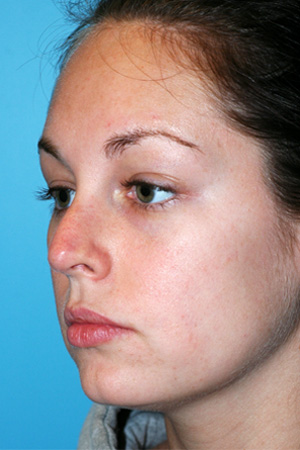 Richard Davis, MD Revision Rhinoplasty: Patient 1, Oblique View, Pre-Op