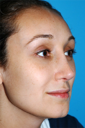 Richard Davis, MD Revision Rhinoplasty: Patient 2, Oblique View, Post-Op