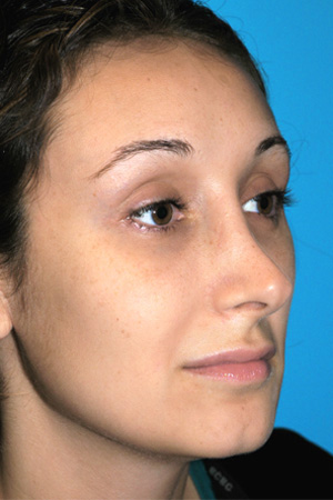 Richard Davis, MD Revision Rhinoplasty: Patient 2, Oblique View, Pre-Op