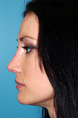 Richard Davis, MD Revision Rhinoplasty: Patient 4, Profile View, Post-Op