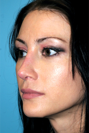 Richard Davis, MD Revision Rhinoplasty: Patient 4, Oblique View, Post-Op