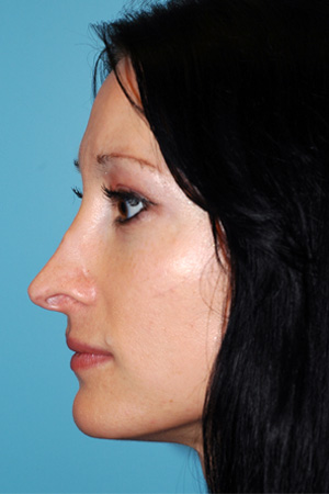 Richard Davis, MD Revision Rhinoplasty: Patient 4, Profile View, Pre-Op