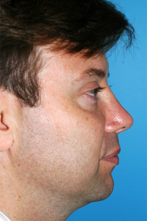 Richard Davis, MD Revision Rhinoplasty: Patient 5, Profile View, Post-Op