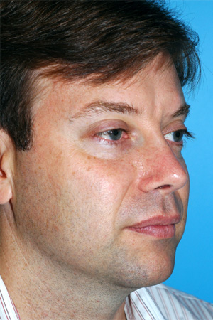Richard Davis, MD Revision Rhinoplasty: Patient 5, Oblique View, Post-Op