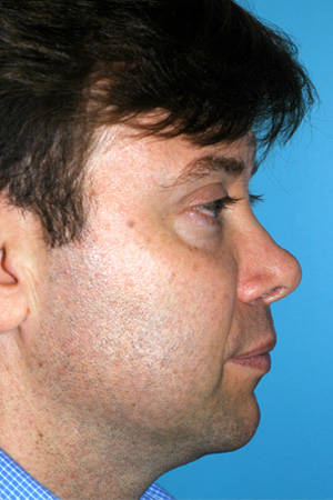 Richard Davis, MD Revision Rhinoplasty: Patient 5, Profile View, Pre-Op