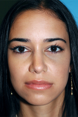 Richard Davis, MD Revision Rhinoplasty: Patient 6, Front View, Post-Op