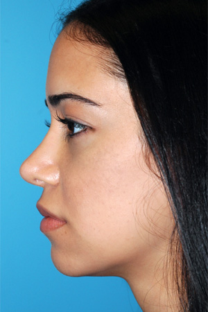Richard Davis, MD Revision Rhinoplasty: Patient 6, Profile View, Post-Op