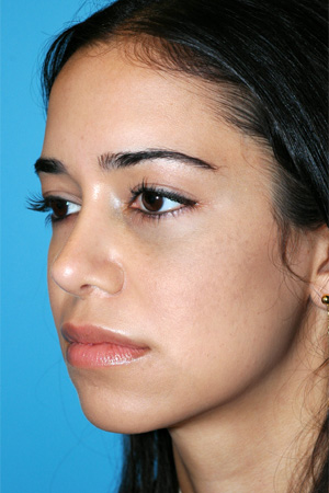 Richard Davis, MD Revision Rhinoplasty: Patient 6, Oblique View, Post-Op