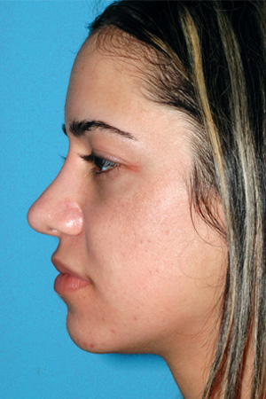 Richard Davis, MD Revision Rhinoplasty: Patient 6, Profile View, Pre-Op