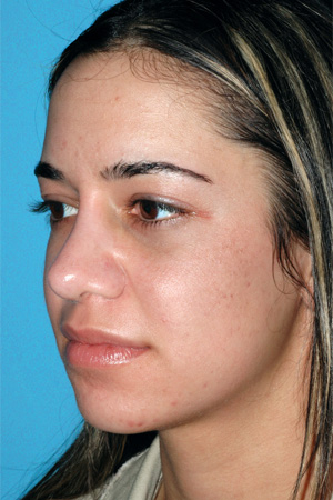 Richard Davis, MD Revision Rhinoplasty: Patient 6, Oblique View, Pre-Op