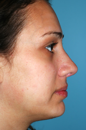 Richard Davis, MD Revision Rhinoplasty: Patient 7, Profile View, Post-Op