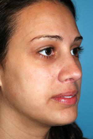 Richard Davis, MD Revision Rhinoplasty: Patient 7, Oblique View, Post-Op