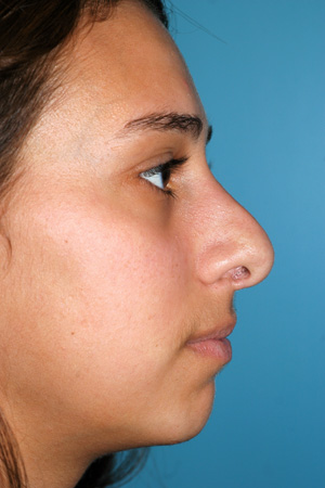 Richard Davis, MD Revision Rhinoplasty: Patient 7, Profile View, Pre-Op