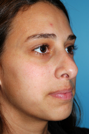 Richard Davis, MD Revision Rhinoplasty: Patient 7, Oblique View, Pre-Op