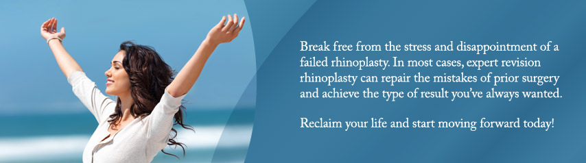 Expert revision rhinoplasty can repair the mistakes of prior surgery and achieve the type of result you've always wanted